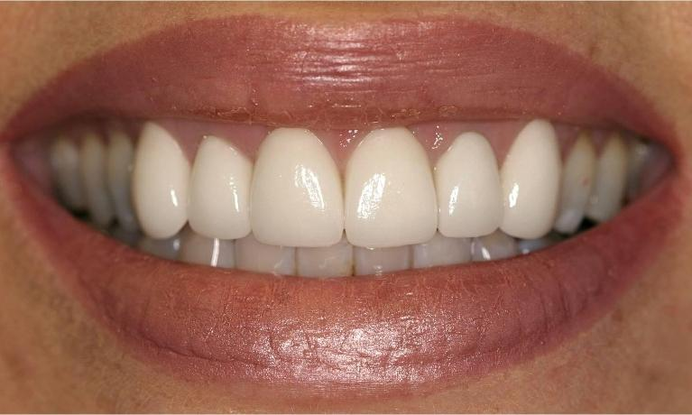 Porcelain-Crowns-and-Periodontal-Treatment-After-Image
