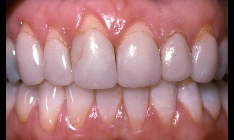 Porcelain-Crowns-and-Periodontal-Treatment-Before-Image